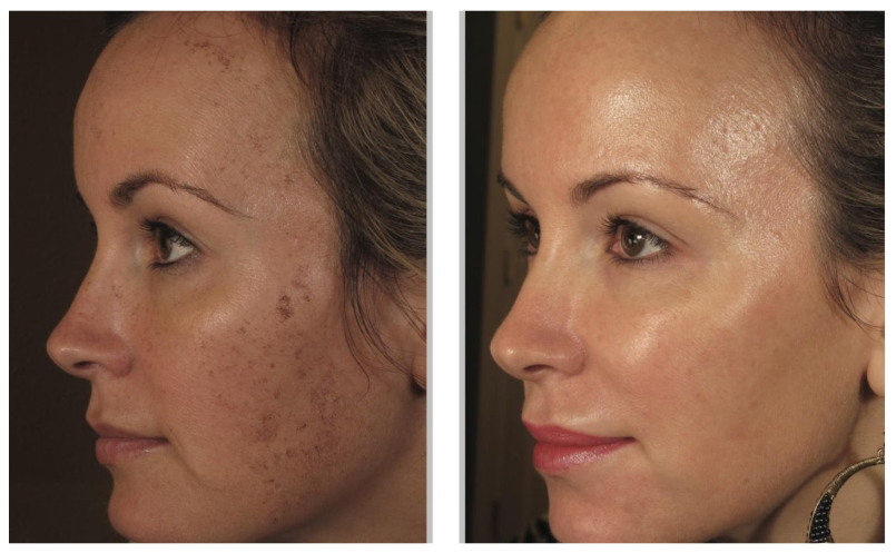 Berkeley Laser Skin Treatments Cosmetic Dermatology
